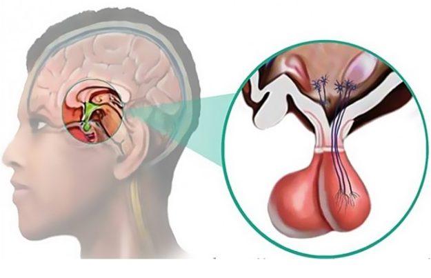 Hipofiz Adenomu Belirtileri