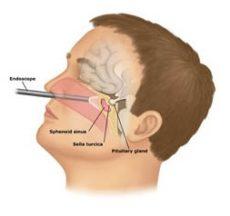 Hipofiz bezi ameliyatı